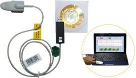 CREATIVE Smart-sensor (oxigénszaturáció mérő feldolgozó szoftver)